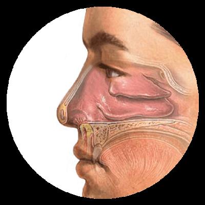 Nieżyt naczynioruchowy nosa.
