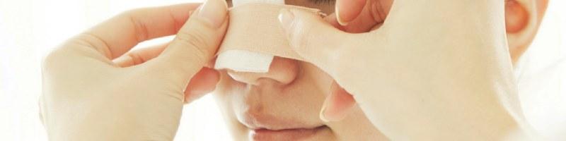 Pacjent z skrzywioną przegrodą nosową.